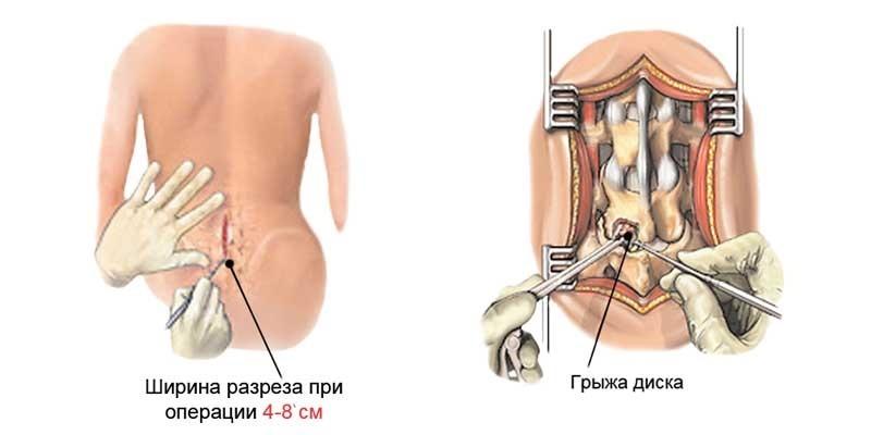 Микрохирургия грыжи