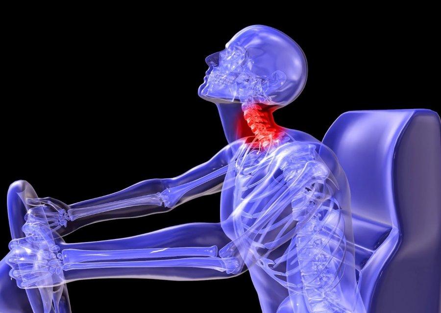 Травма шейного отдела позвоночника