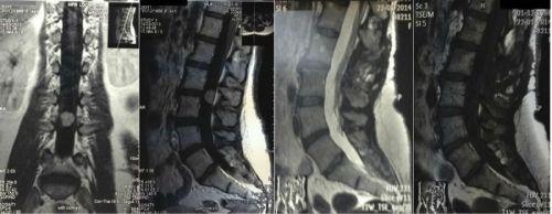 Эпендимома до и после операции