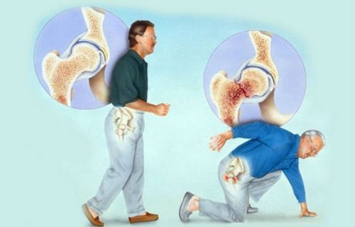 Перелом костей при остеопорозе