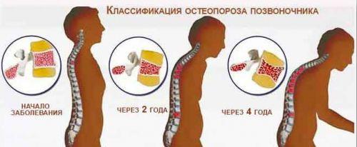 Классификация остеопороза