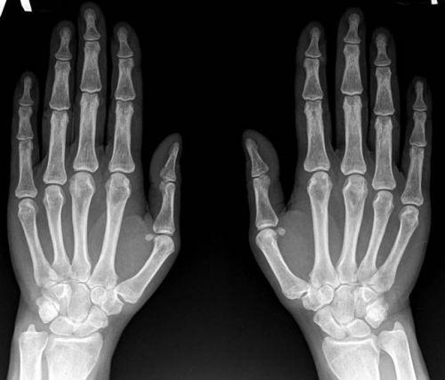 Рентген кистей