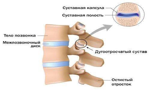 Артроз фасеточных суставов