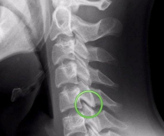 Рентгенография позвоночника