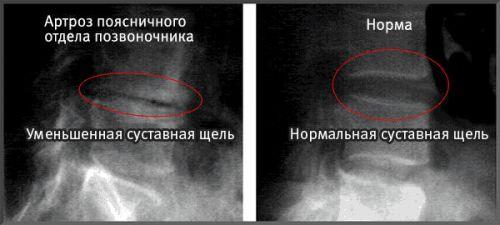 Рентген при артрозе позвоночника