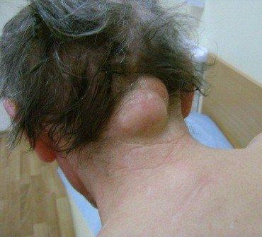 Опухоль на шее