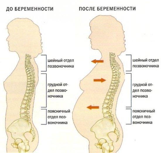 Изменения со стороны позвоночника при беременности