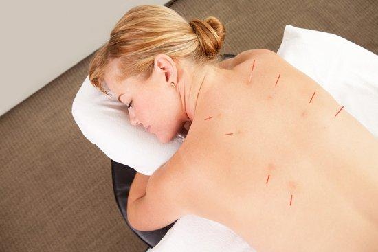 Иглоукалывание для спины