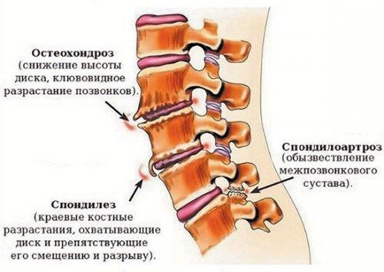 Различия остеохондроза, спондилеза и спондилоартроза