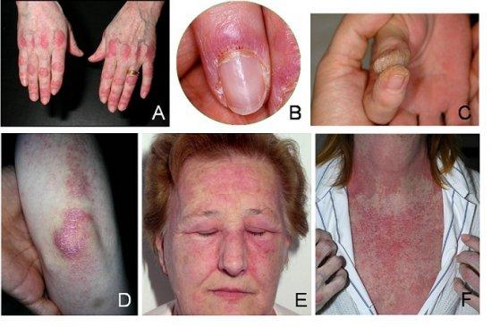 Внешние признаки дерматомиозита