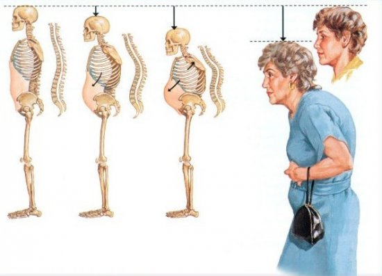 Последствия остеопороза