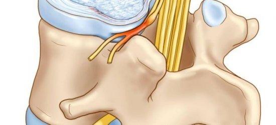 Защемление спинномозговых корешков