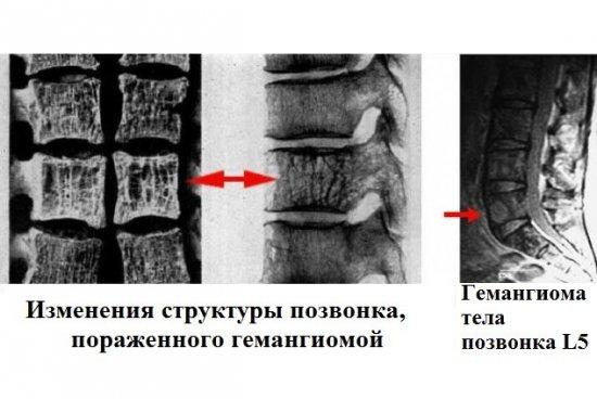 Гемангиома позвоночника