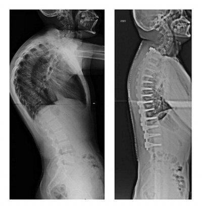 Результат хирургического лечения горба на спине
