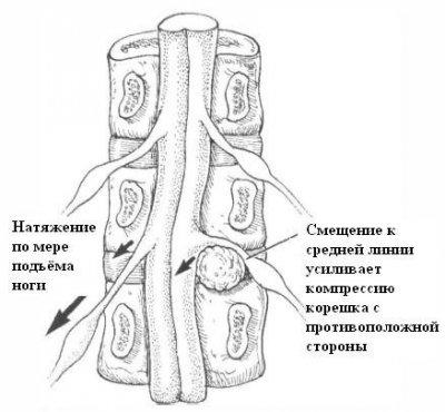 Механизм перекрестного симптома Бехтерева
