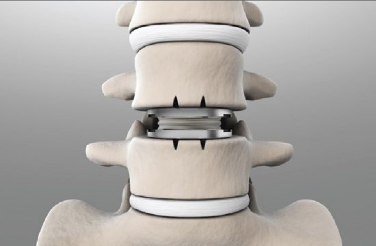 Имплантация протеза в позвоночник