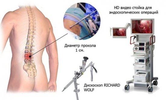 Оборудование для микродискэктомии