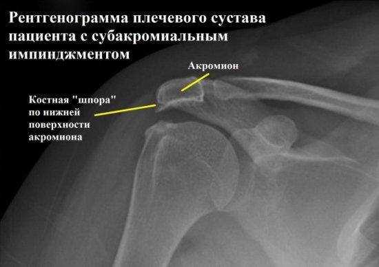 Рентген при импинджмент синдроме плеча