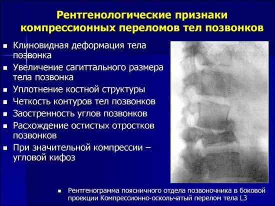 Рентген при компрессионном переломе позвоночника