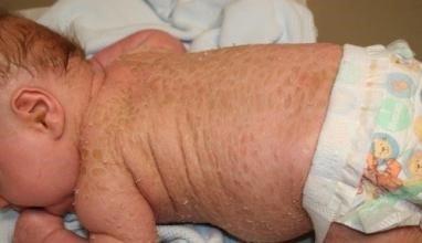 Нейрофиброматоз у ребенка