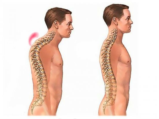 Деформация позвоночника при остеохондрозе