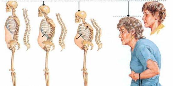 Изменение фигуры при остеопорозе позвоночника