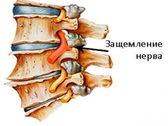 Защемление нерва в позвоночнике