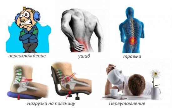 Основные причины развития хондроза у современного человека