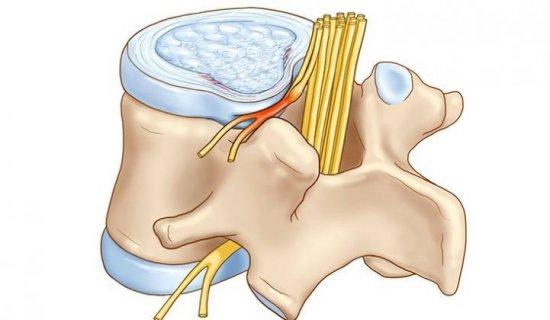 Защемление нервного корешка спинного мозга