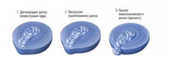 Развитие протрузии межпозвоночного диска