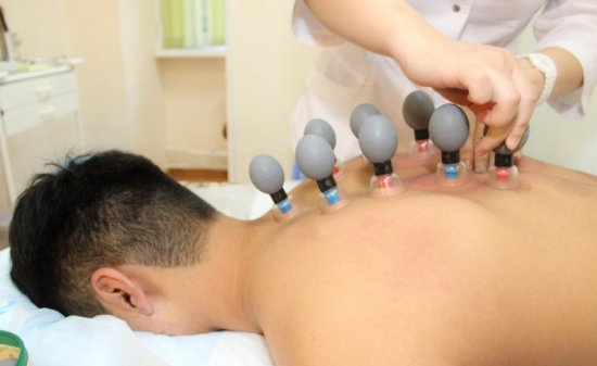 Вакуумный массаж спины