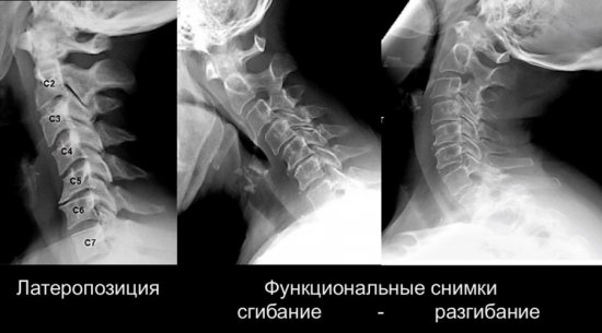 Рентген шейного отдела