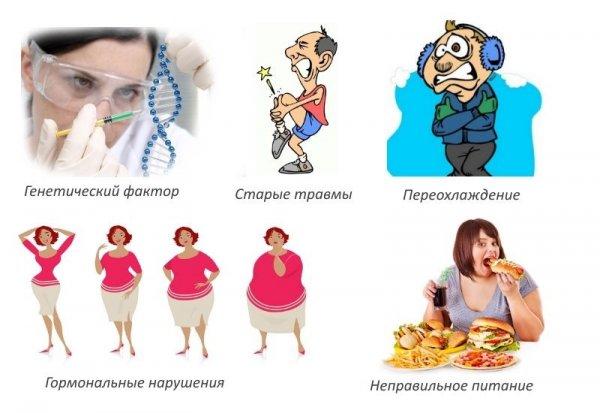 Факторы риска заболеваний суставов