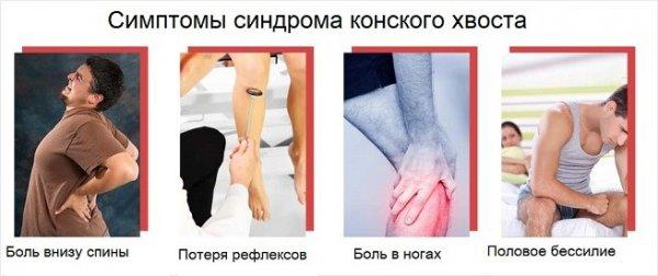 Симптомы синдрома конского хвоста