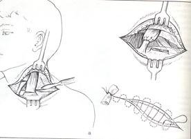 Операция при кривошее