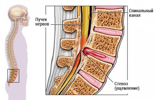 Сдавливание нервных корешков спинного мозга