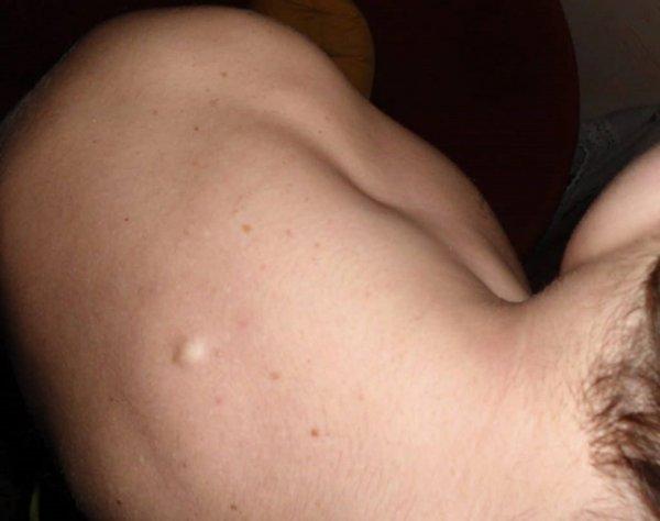 Образование на коже спины