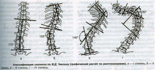 Классификация сколиоза