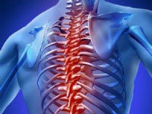 Изображение - Реберно позвоночный сустав artreb-pozvonochnyh