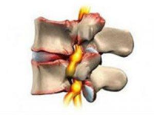 Артроз межпозвоночного и коленного сустава оссификаты локтевого сустава у ребенка