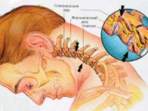 Артроз шейного отдела позвоночника
