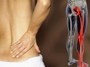 Болит спина и отдает в ногу