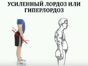 Гиперлордоз