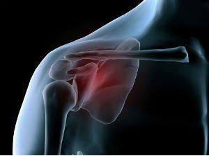 Субакромиальное пространство плечевого сустава норма разрыв боковой связки коленного сустава