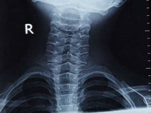 Рентген шейного отдела позвоночника