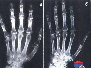 Рентген кисти руки