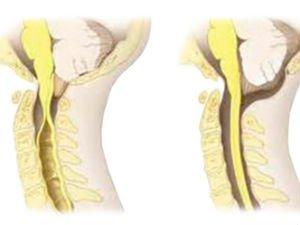 Сирингомиелия