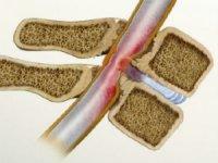 Сужение спинномозгового канала