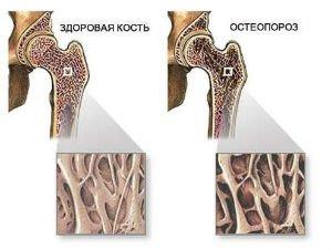 Хронический Ревматоидный Артрит